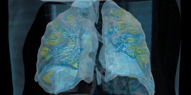 Погледнете како изгледаат белите дробови на заразен пациент од коронавирус
